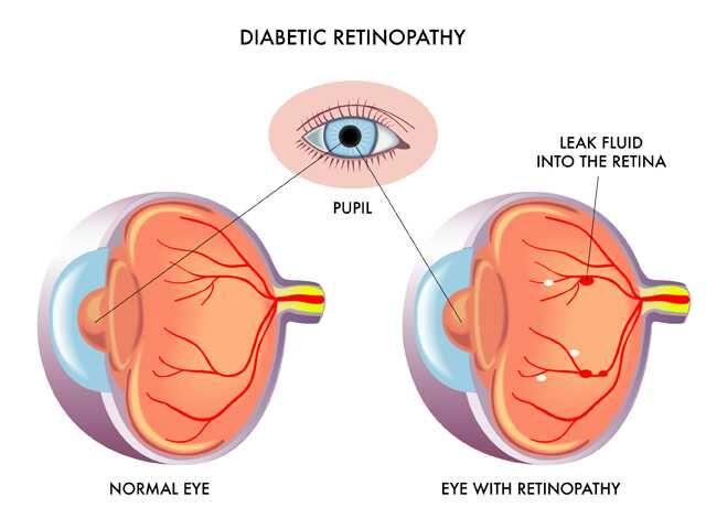 Diabetic%20Retinopathy Annual Dilated Eye Exams Key In Preventing Diabetic Eye Disease