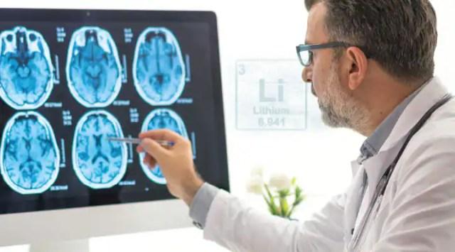 Scientist examining brain scans for supplementing lithium