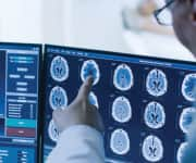 Doctors examining brain scans
