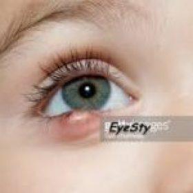 guheri in eyes