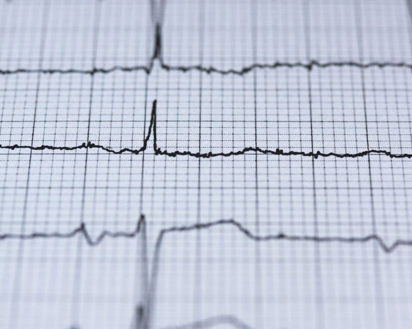 LifeNet EMS Donates AED's to Region