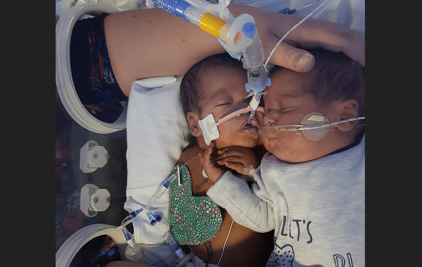 Newborn Twin Saves His Brother's Life With a Hug