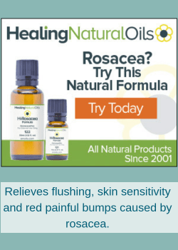 essential oil for rosecea