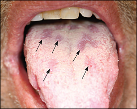 Sign of Syphilis | Lifestan