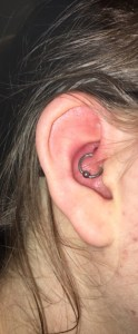 Daith Piercing Update: Bumps and Healing – lifestartswithcoffee