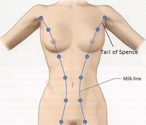 milk lines tail of spence lumps in armpits