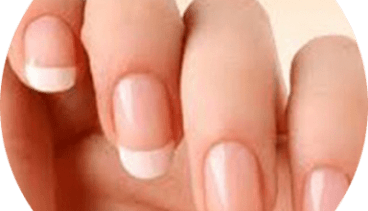 Peeling Nails? Nails Falling Off? Onychomadesis after Hand, Foot