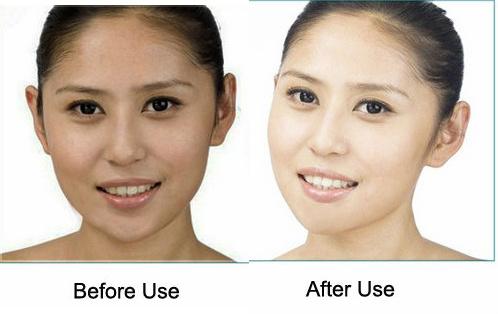kojic acid skin lightening cream soap reviews and side effects lightskincure
