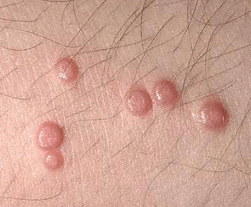 bumps on chest not acne red itchy white small under skin how to rid of it treatment