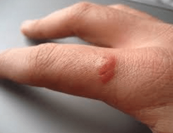 bumps on finger joints