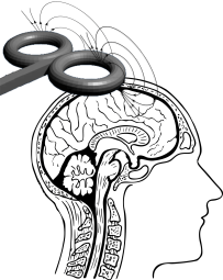 Transcranial Magnetic Stimulation Claims