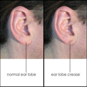 diagonal-earlobe-crease