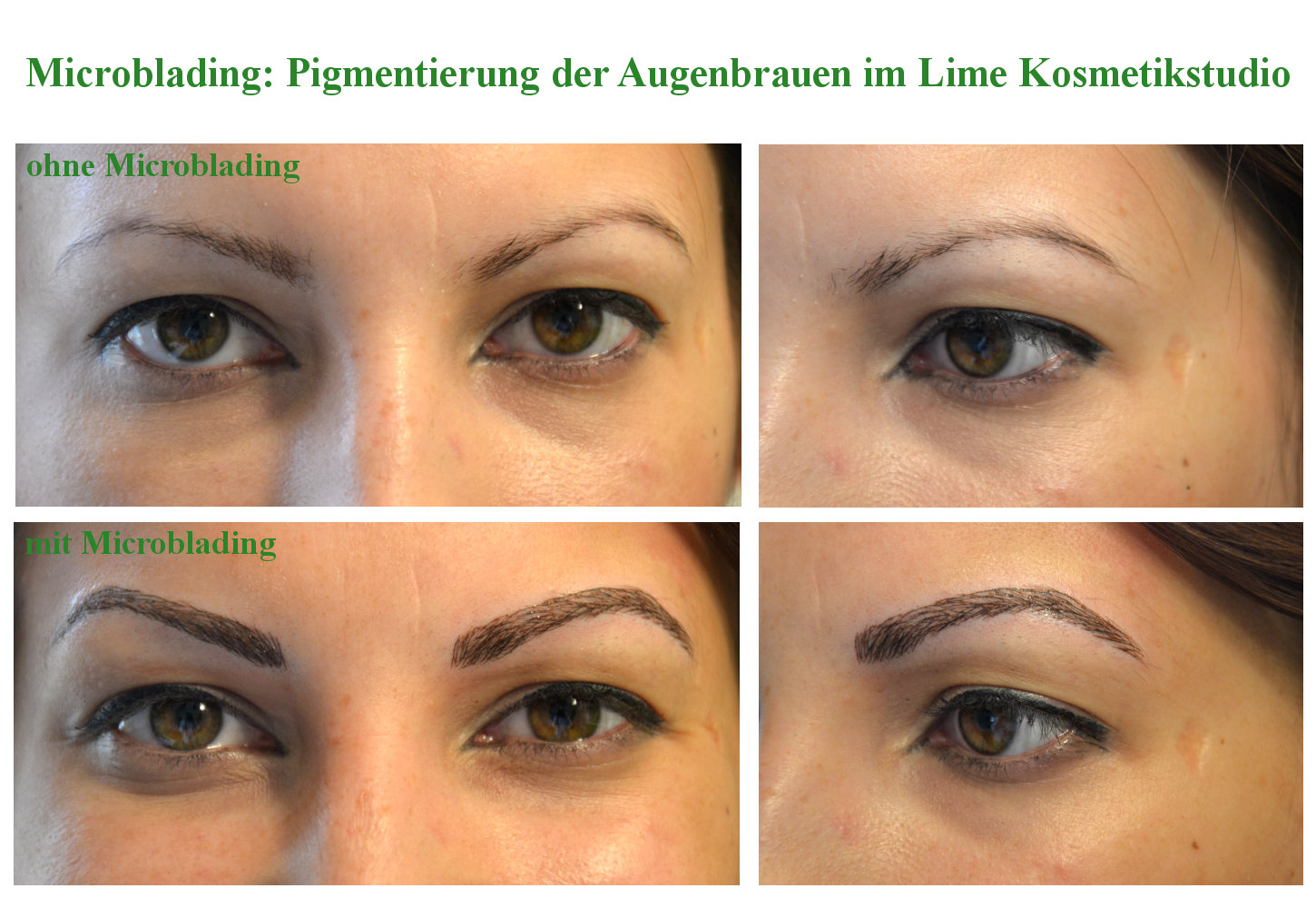 Plastic Surgery Puffiness Under Eyes