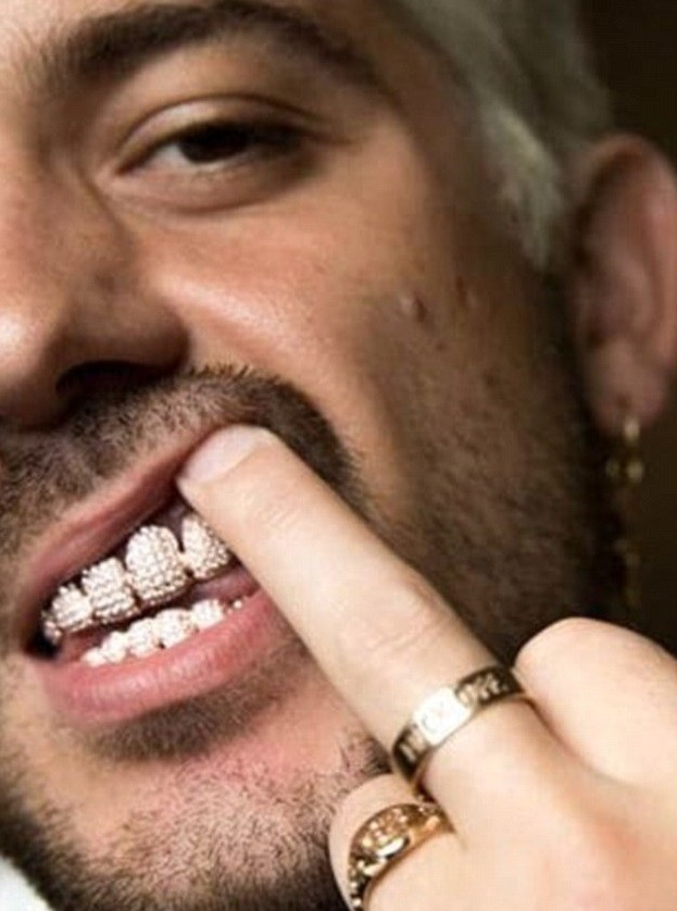 Rapper G-Eazy splashes $30,000 on a rose gold grill encrusted with 500 diamonds