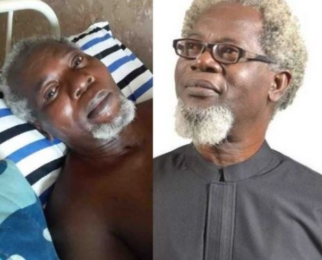 Image result for Two years after, Nigerian actor Victor Olaotan still needs money to travel abroad over possibility of his two legs being amputated