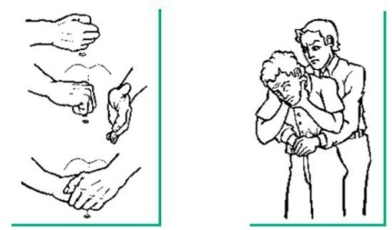 Maniobra de Heimlich. obstrucción de las vías aéreas