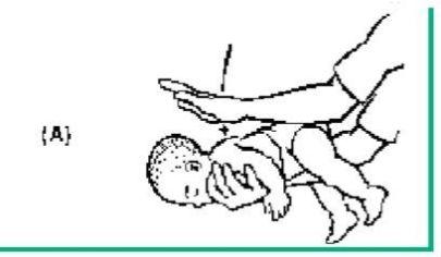 Maniobra de Heimlich. Atragantamiento por cuerpo extraño