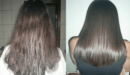 Laceado brasileiro antes y despues de adelgazar