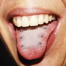 malla en la lengua para adelgazar en venezuela hoy