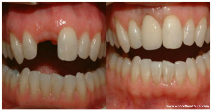 epanastatiki-anakalipsi-pite-antio-sta-odontika-emfitevmata-ke-megaloste-ta-dika-sas-dontia-2