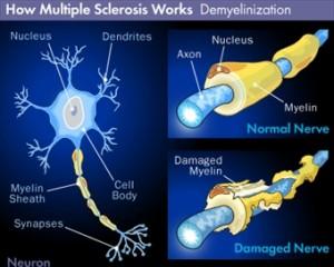 foto articolo sclerosi multipla europa