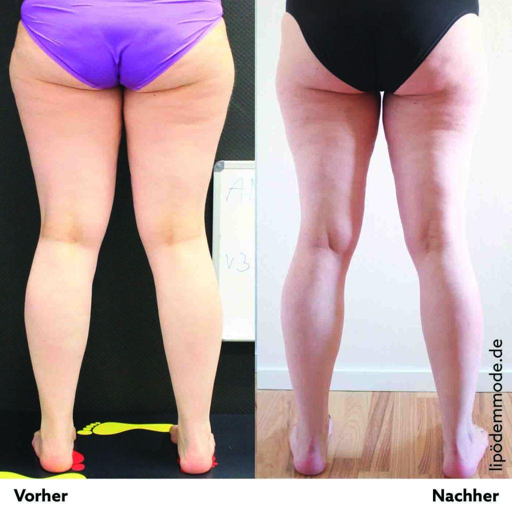 lipoedem mode liposuktion beine vorher nachher