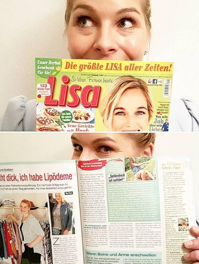 lipoedemmode_presse_lisa