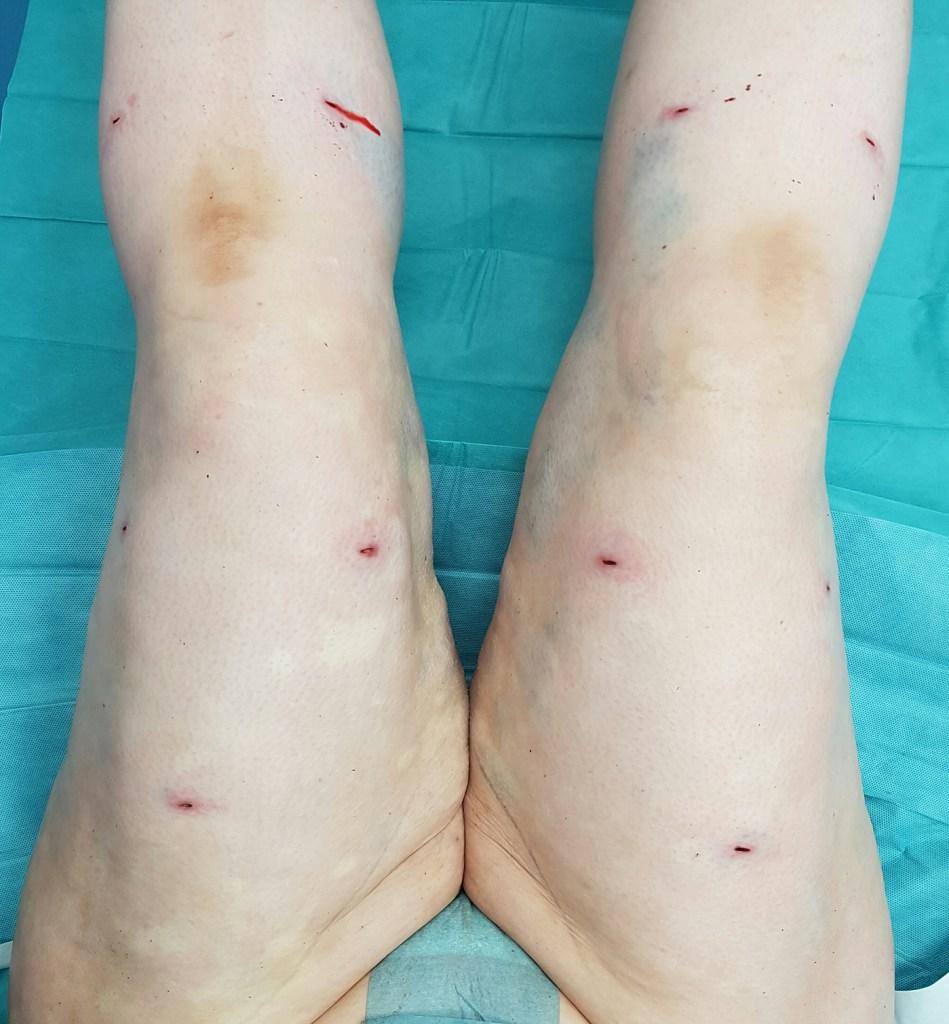 lipoedem mode liposuktion LipoClinic stadium 2 3 dr. witte lipödem mühlheim an der ruhr operationen bericht erfahrung