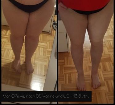 lipoedem mode liposuktion liposuction before after LipoClinic stadium 2 3 dr. witte lipödem mühlheim an der ruhr operationen bericht erfahrung vorher nachher
