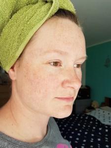 lipoedem mode dermasence hautpflege produkt test vorher