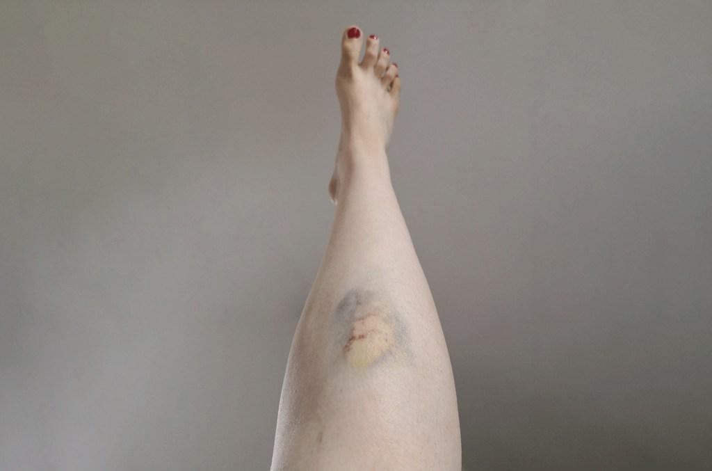 I have lipedema hematoma bruises