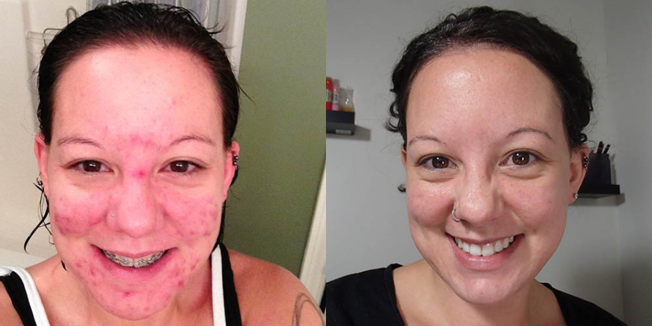 Skincare-Addiction Before & After