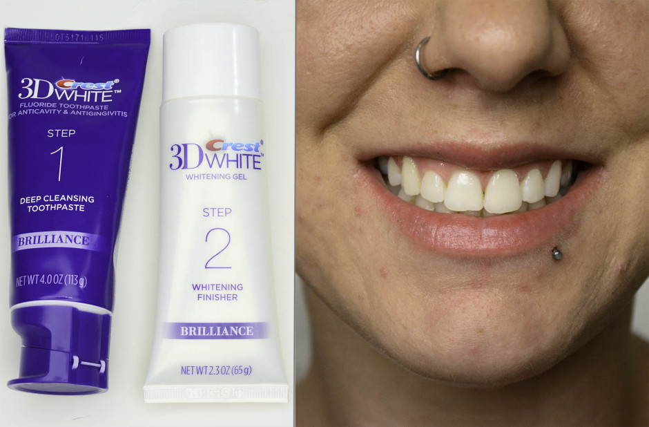 3 Quick Ways to Hide the Signs of Aging: Brighten Your Smile