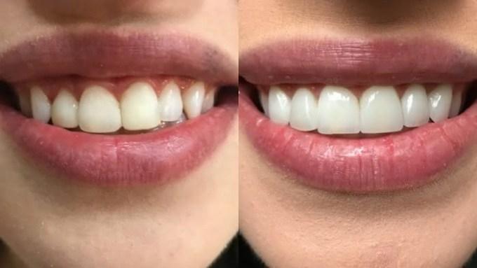 Como Clarear Os Dentes Naturalmente Veja O Que Eu Fiz