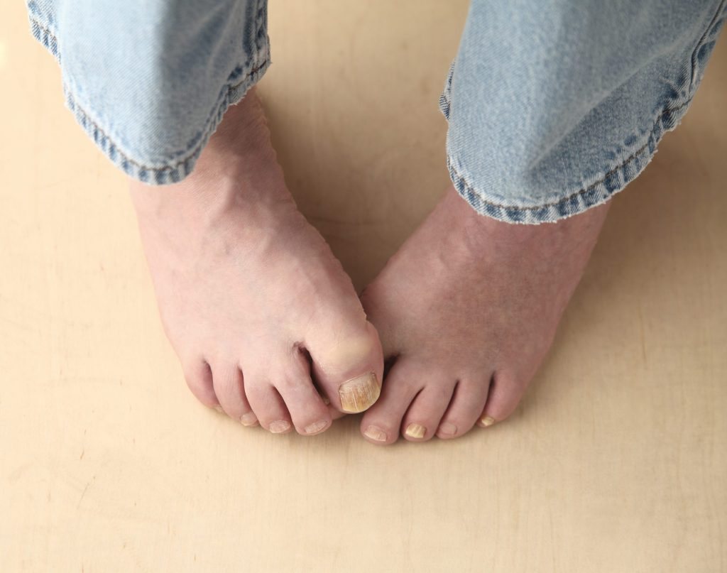 man with gross toenails