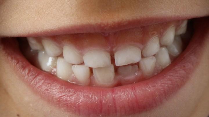 Hygiène dentaire : nos conseils