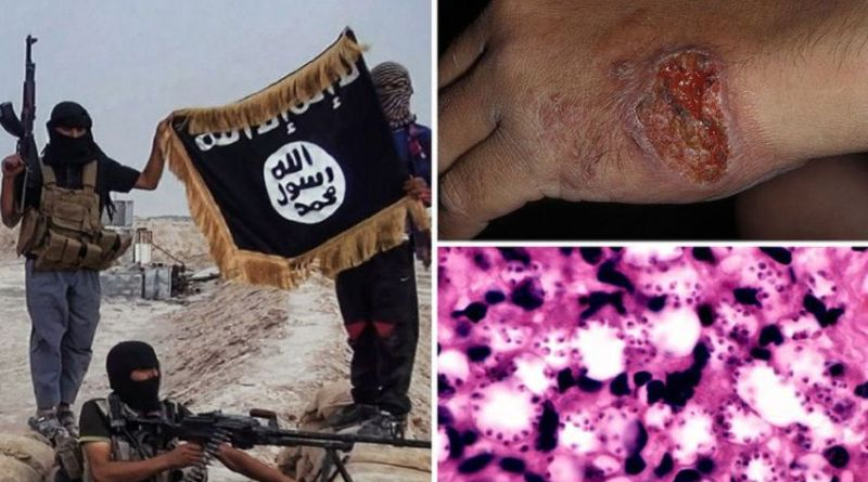 LLL - Live Let Live - ISIS terrorist group is losing in Syria but it's spreading deadly flesh-eating disease