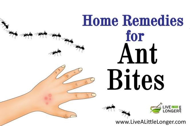 Here Are The Top 10 Home Remedies For Fire Ant Bites