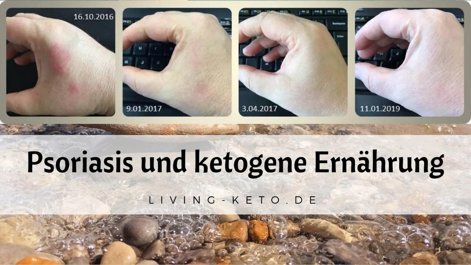 Psoriasis – Wie ketogene Ernährung dabei hilft