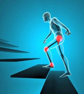 Zwei gemeinsame Bereiche für Fibromyalgie Trigger-Punkte, die miteinander in Beziehung stehen können, sind der Beckenbereich und dann bis zur Innenseite beider Knie.