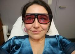 Mijn ervaring met laserontharing