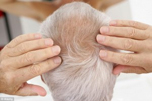 high blood pressure hair loss