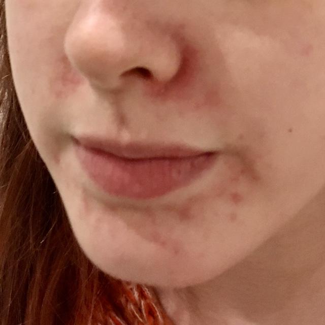 Redness Around the Nose