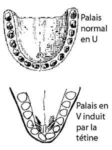 Différence palais selon biberon ou allaitement