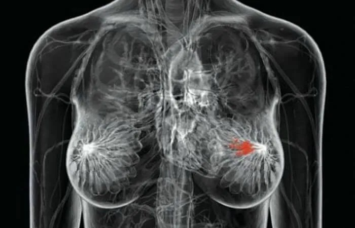 otkriven-rak-dojke-2016
