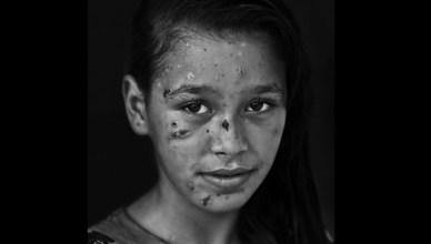 foto van het jonge meisje Dalia Khalifa, getroffen door Israëlisch shrapnel