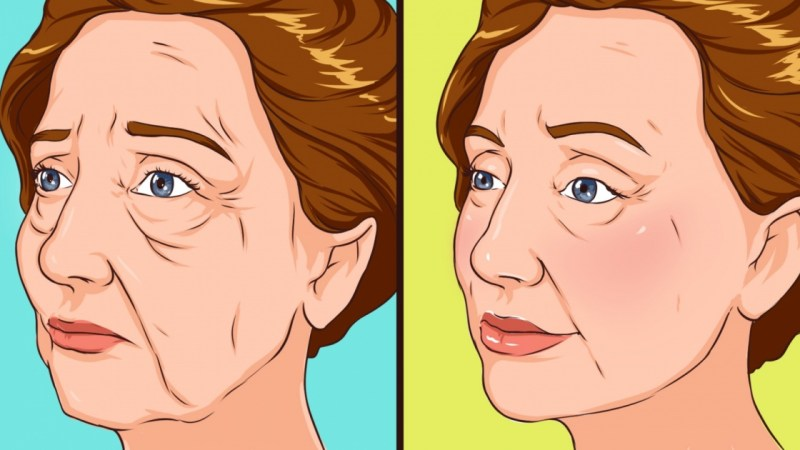 Jowls Overview: Causes, Treatment, Prevention And More