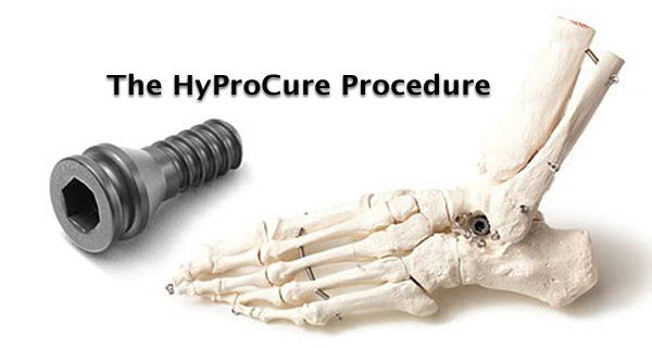 The HyProCure Procedure