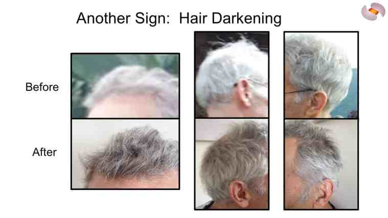 triim human life extension trial reverses gray hair