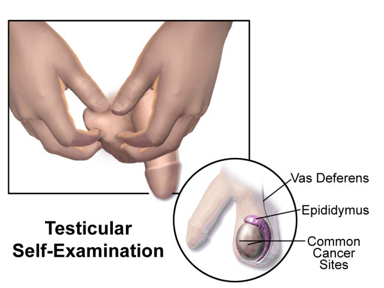 detect testicular cancer self exam